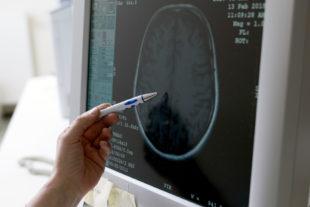 Der Gehirn-Scan liefert hoch auflösende Bilder zur Schlaganfall-Befundung. Foto: Hephata